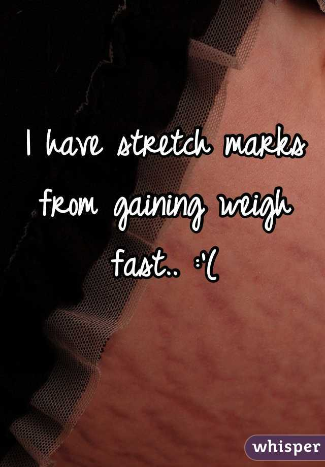 I have stretch marks from gaining weigh fast.. :'(