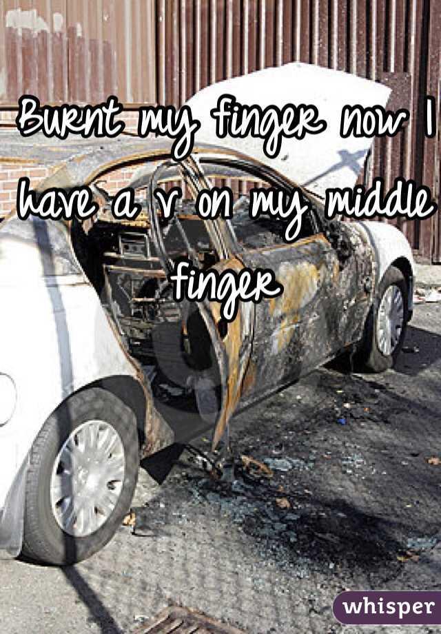 Burnt my finger now I have a v on my middle finger