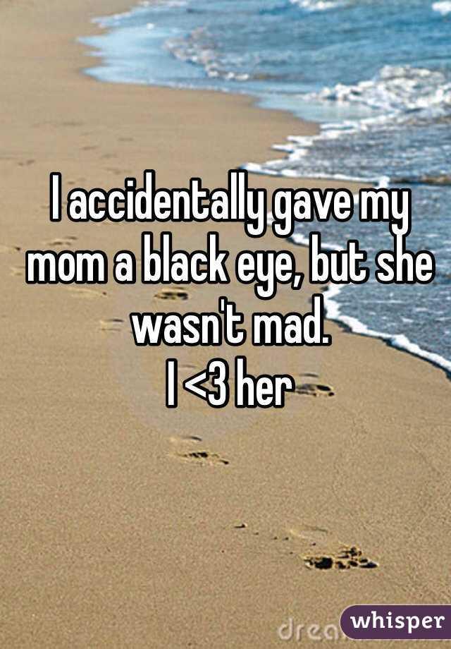I accidentally gave my mom a black eye, but she wasn't mad.  I <3 her