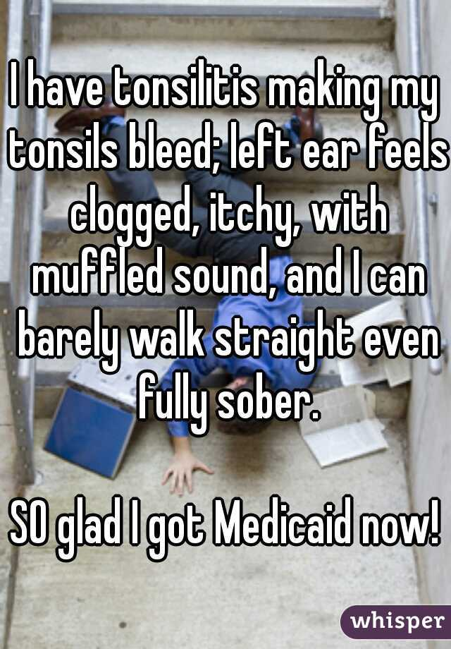 I have tonsilitis making my tonsils bleed; left ear feels clogged, itchy, with muffled sound, and I can barely walk straight even fully sober.    SO glad I got Medicaid now!