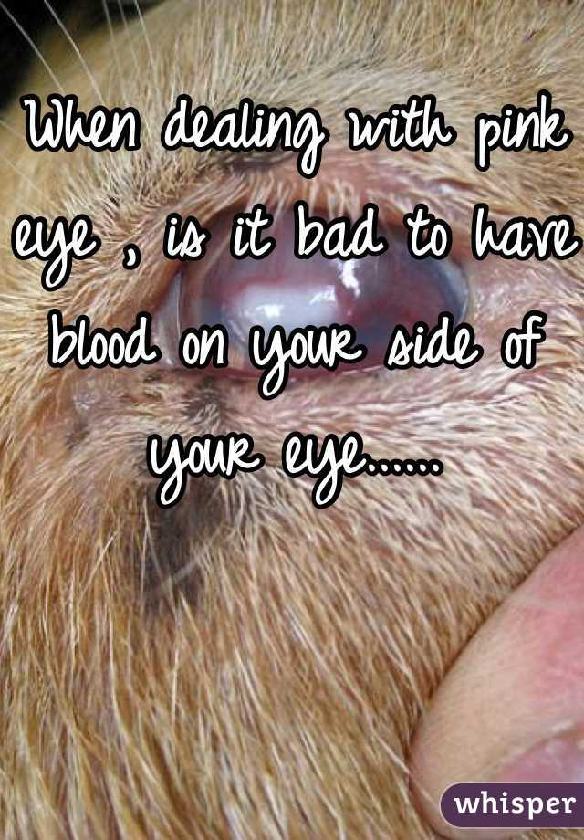 When dealing with pink eye , is it bad to have blood on your side of your eye......