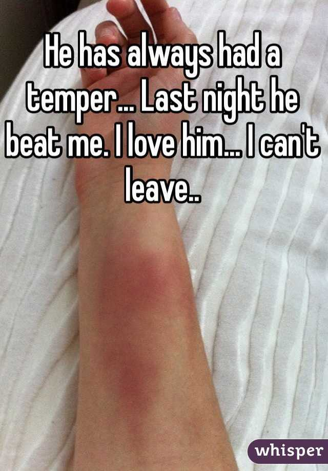 He has always had a temper... Last night he beat me. I love him... I can't leave..