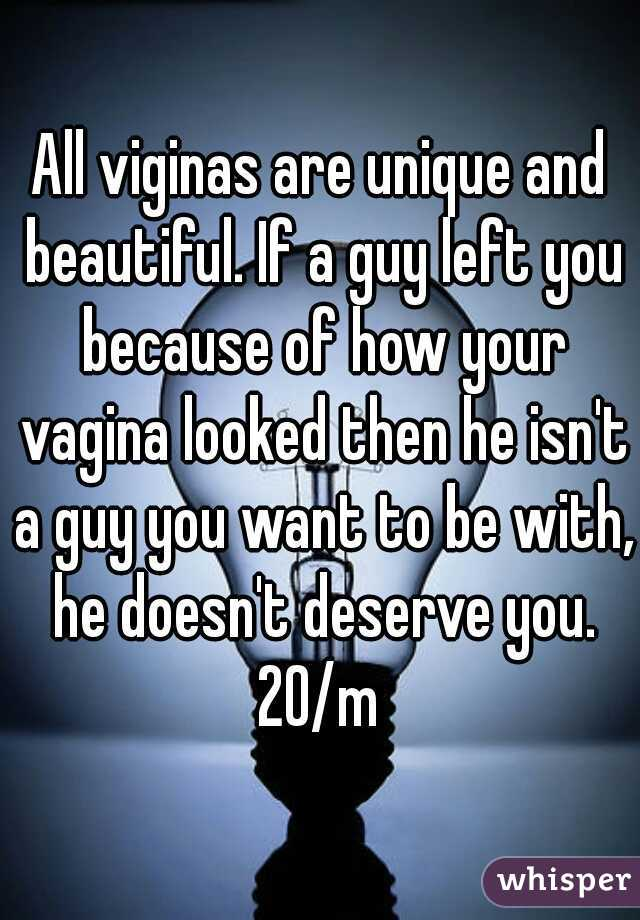 All viginas are unique and beautiful. If a guy left you because of how your vagina looked then he isn't a guy you want to be with, he doesn't deserve you. 20/m