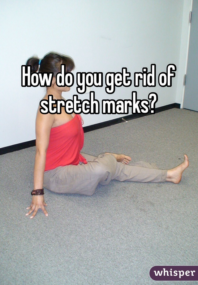 How do you get rid of stretch marks?