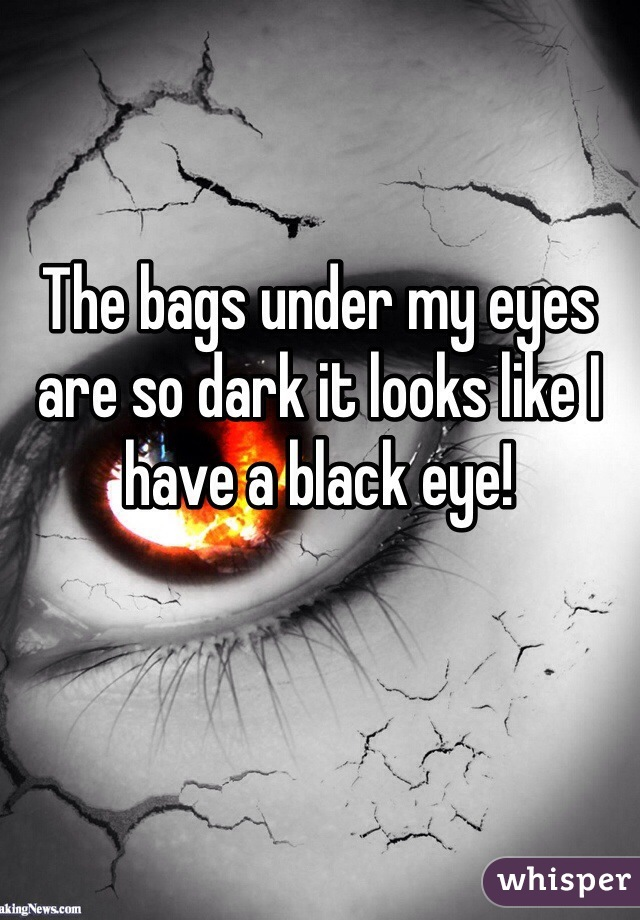 The bags under my eyes are so dark it looks like I have a black eye!