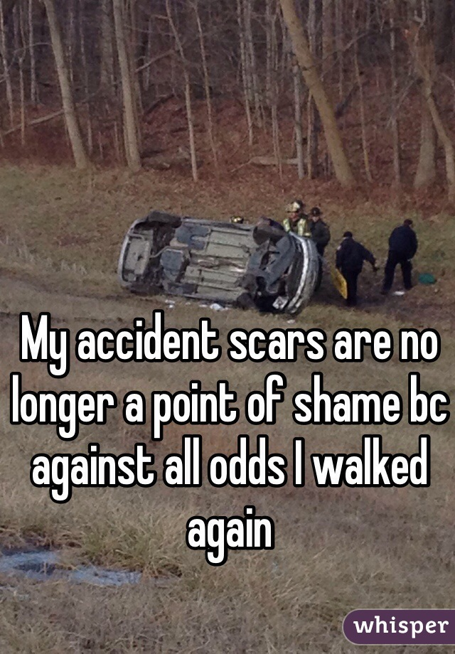 My accident scars are no longer a point of shame bc against all odds I walked again