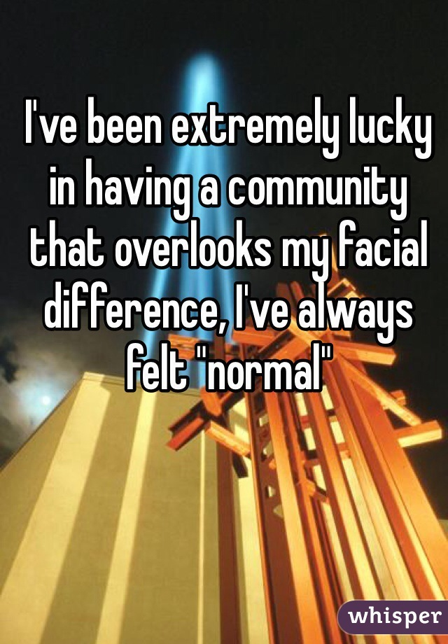 """I've been extremely lucky in having a community that overlooks my facial difference, I've always felt """"normal"""""""