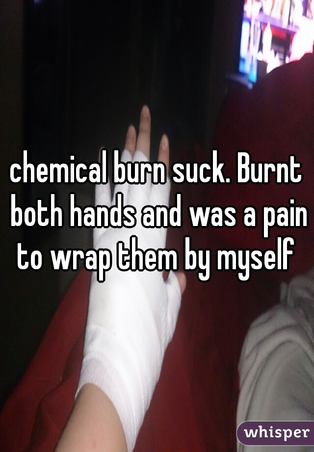 chemical burn suck. Burnt both hands and was a pain to wrap them by myself