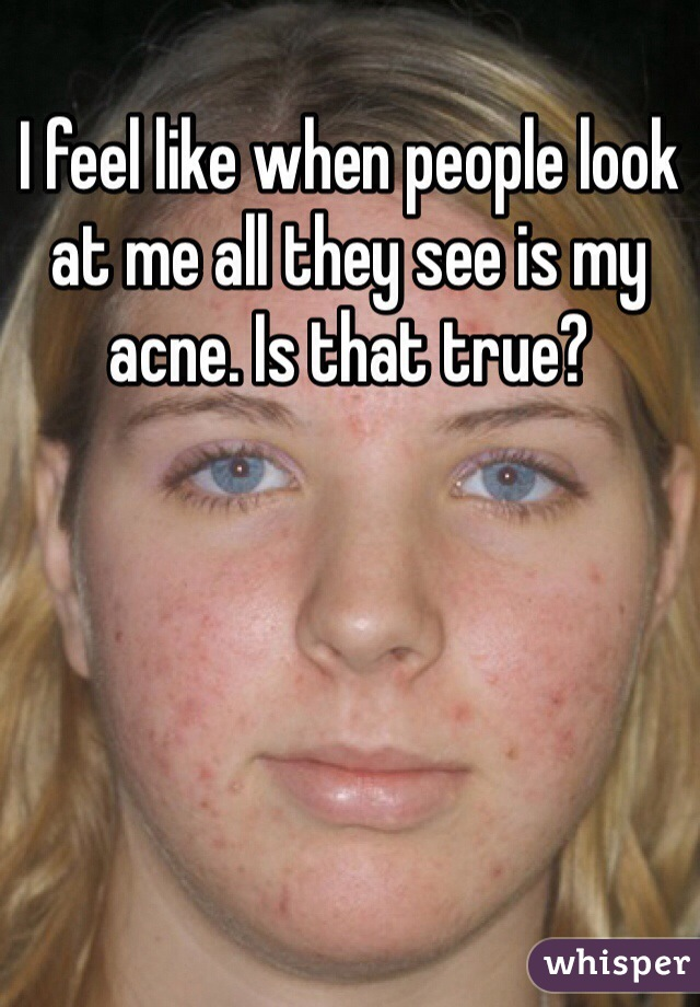 I feel like when people look at me all they see is my acne. Is that true?