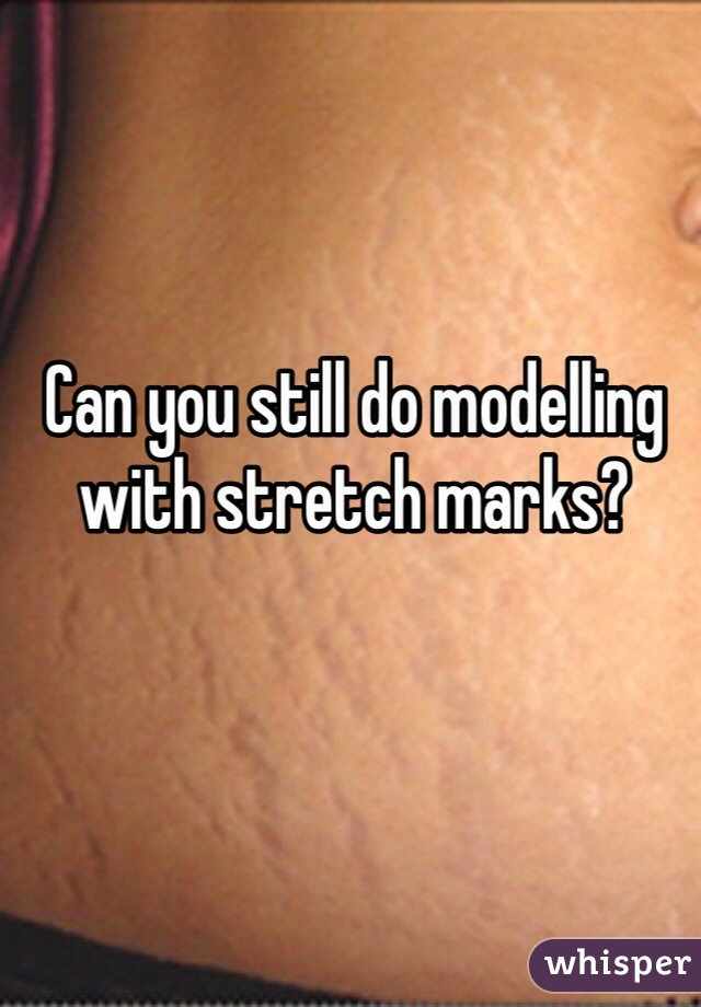 Can you still do modelling with stretch marks?