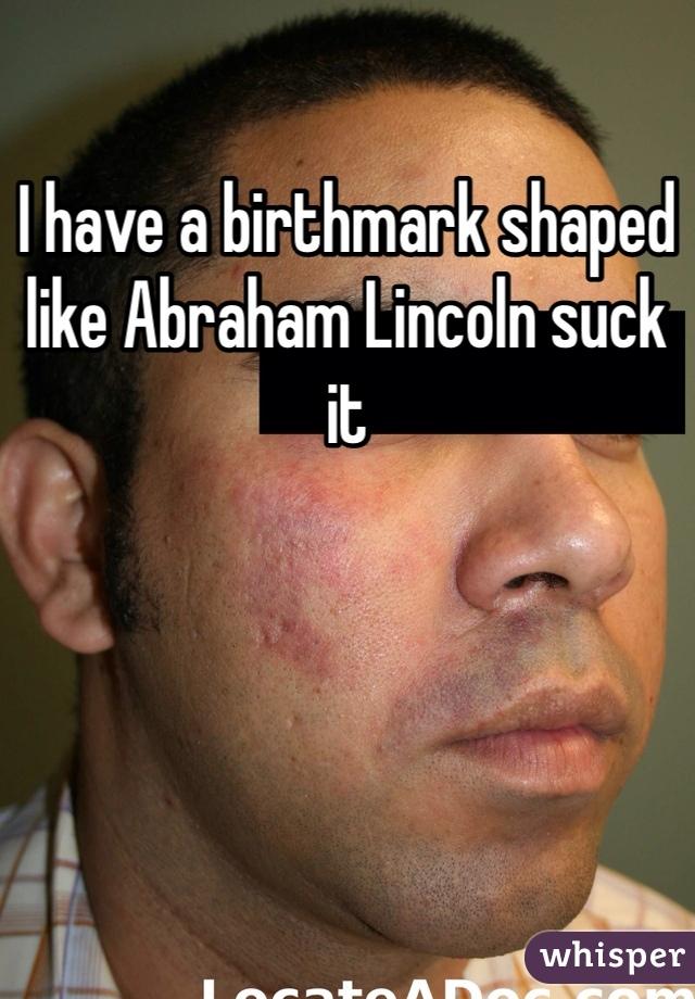 I have a birthmark shaped like Abraham Lincoln suck it