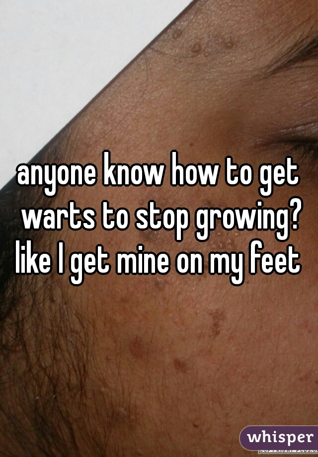 anyone know how to get warts to stop growing? like I get mine on my feet