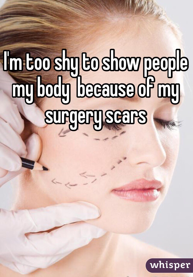 I'm too shy to show people my body  because of my surgery scars