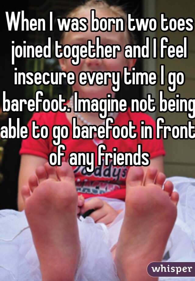 When I was born two toes joined together and I feel insecure every time I go barefoot. Imagine not being able to go barefoot in front of any friends