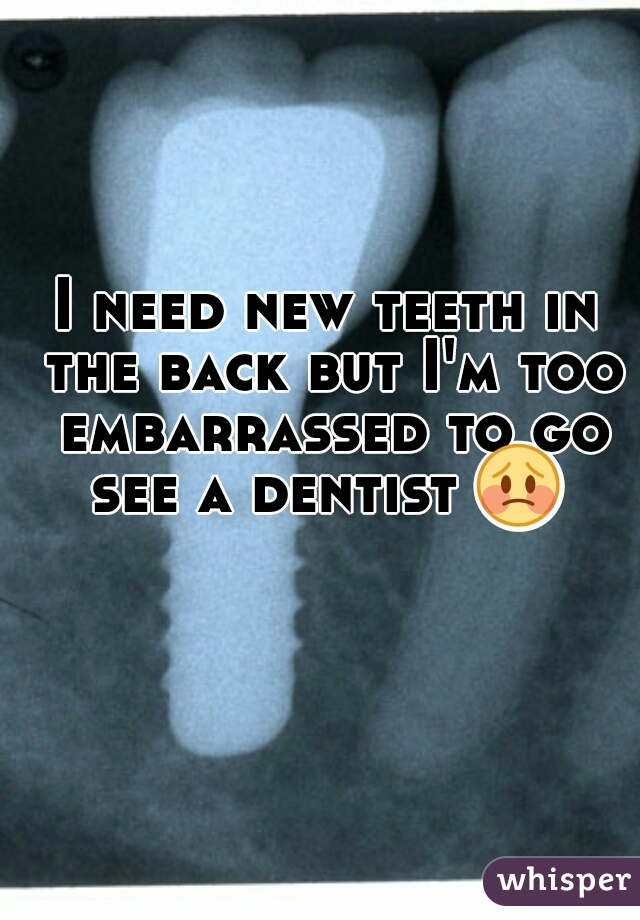 I need new teeth in the back but I'm too embarrassed to go see a dentist 😳