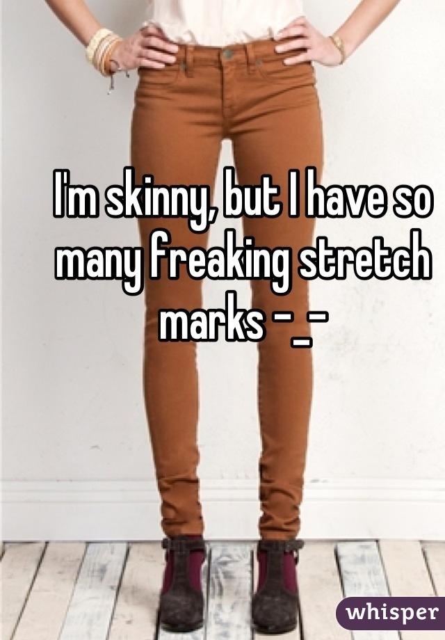 I'm skinny, but I have so many freaking stretch marks -_-