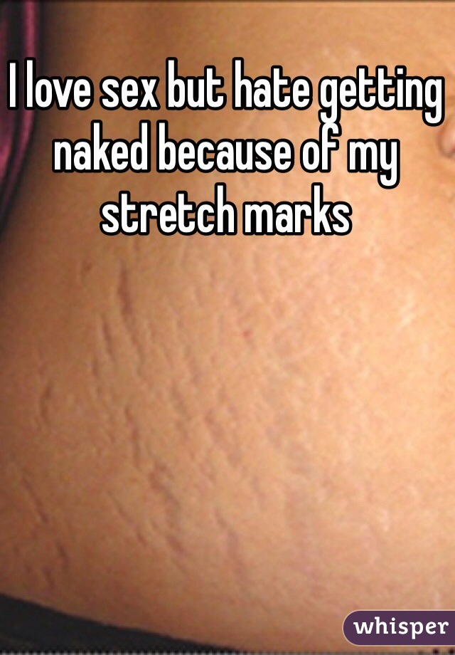 I love sex but hate getting naked because of my stretch marks