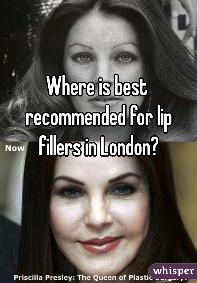 Where is best recommended for lip fillers in London?