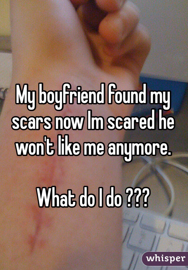 My boyfriend found my scars now Im scared he won't like me anymore.   What do I do ???