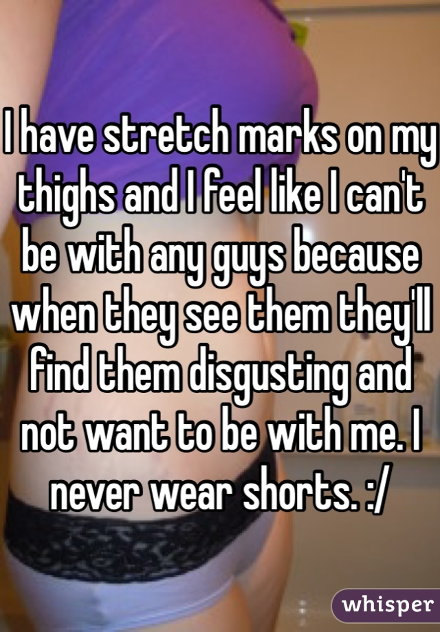 I have stretch marks on my thighs and I feel like I can't be with any guys because when they see them they'll find them disgusting and not want to be with me. I never wear shorts. :/