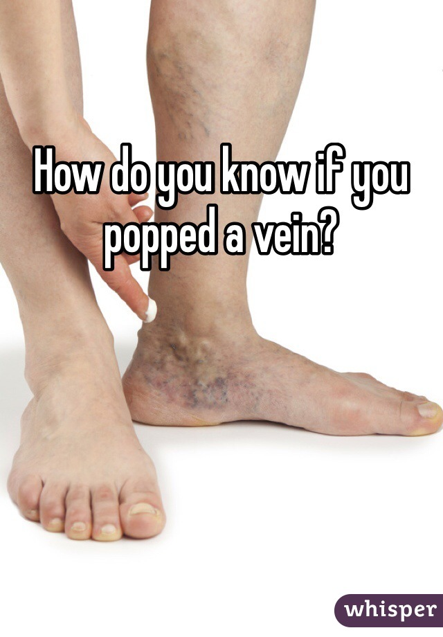 How do you know if you popped a vein?