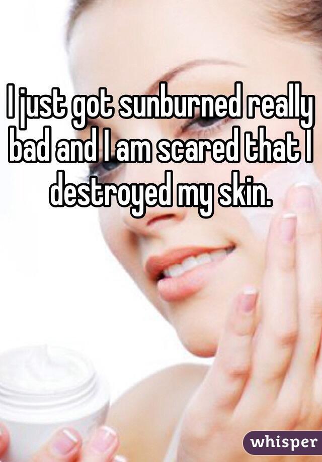 I just got sunburned really bad and I am scared that I destroyed my skin.