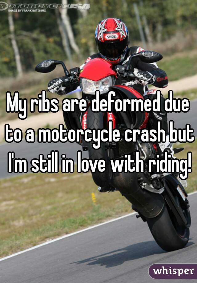 My ribs are deformed due to a motorcycle crash but I'm still in love with riding!