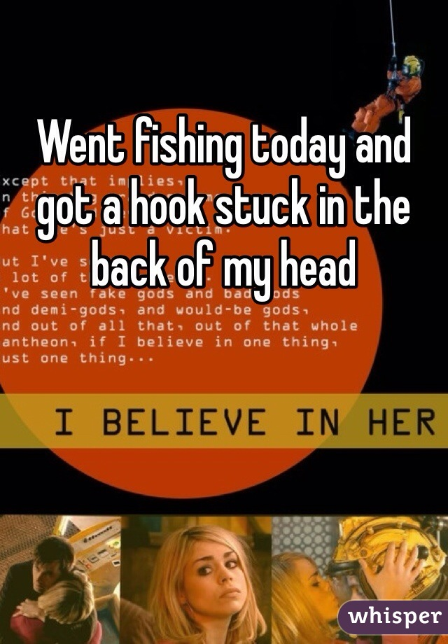 Went fishing today and got a hook stuck in the back of my head