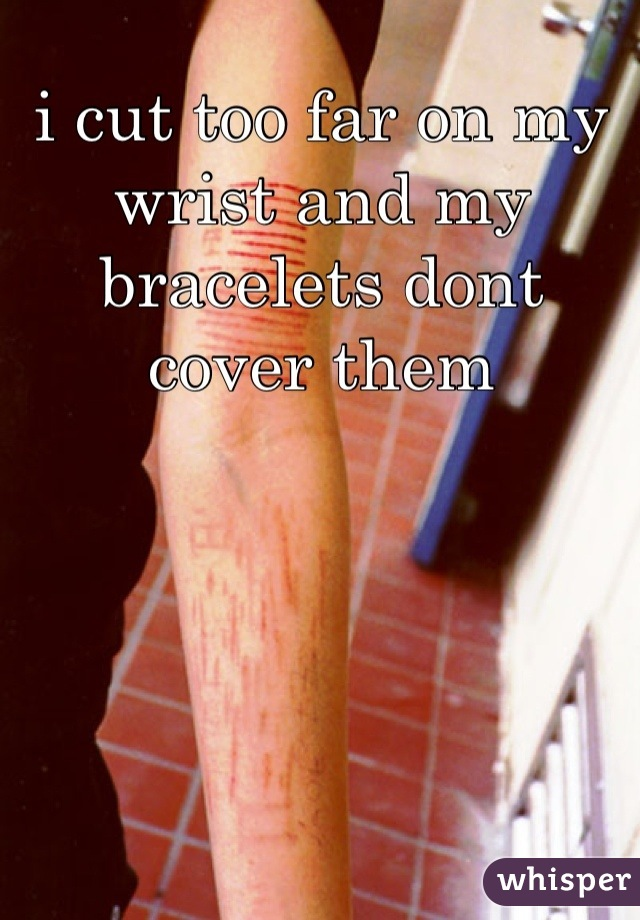 i cut too far on my wrist and my bracelets dont cover them
