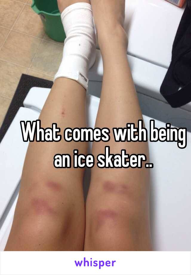 What comes with being an ice skater..