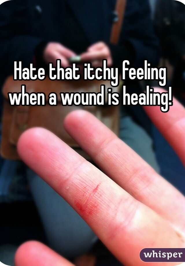 Hate that itchy feeling when a wound is healing!