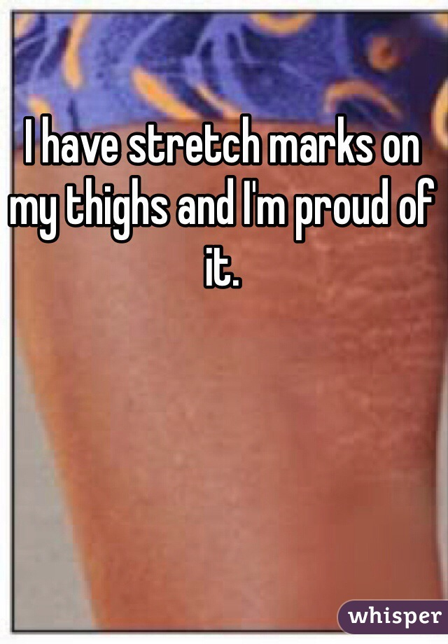 I have stretch marks on my thighs and I'm proud of it.