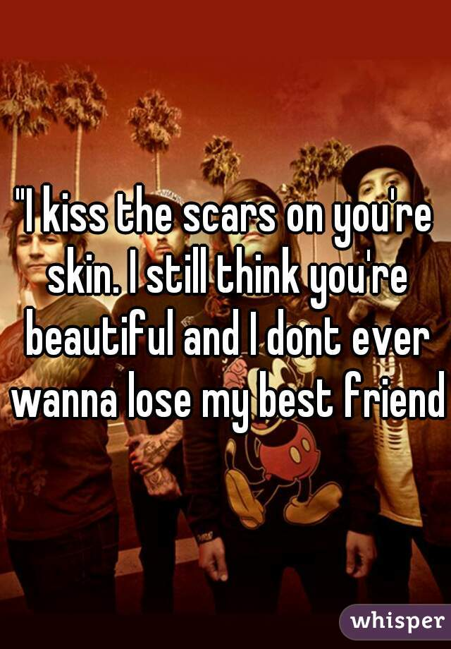 """""""I kiss the scars on you're skin. I still think you're beautiful and I dont ever wanna lose my best friend"""""""