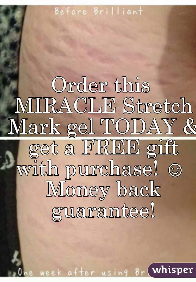 Order this MIRACLE Stretch Mark gel TODAY & get a FREE gift with purchase! ☺  Money back guarantee!