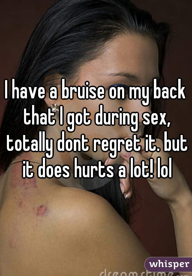 I have a bruise on my back that I got during sex, totally dont regret it. but it does hurts a lot! lol