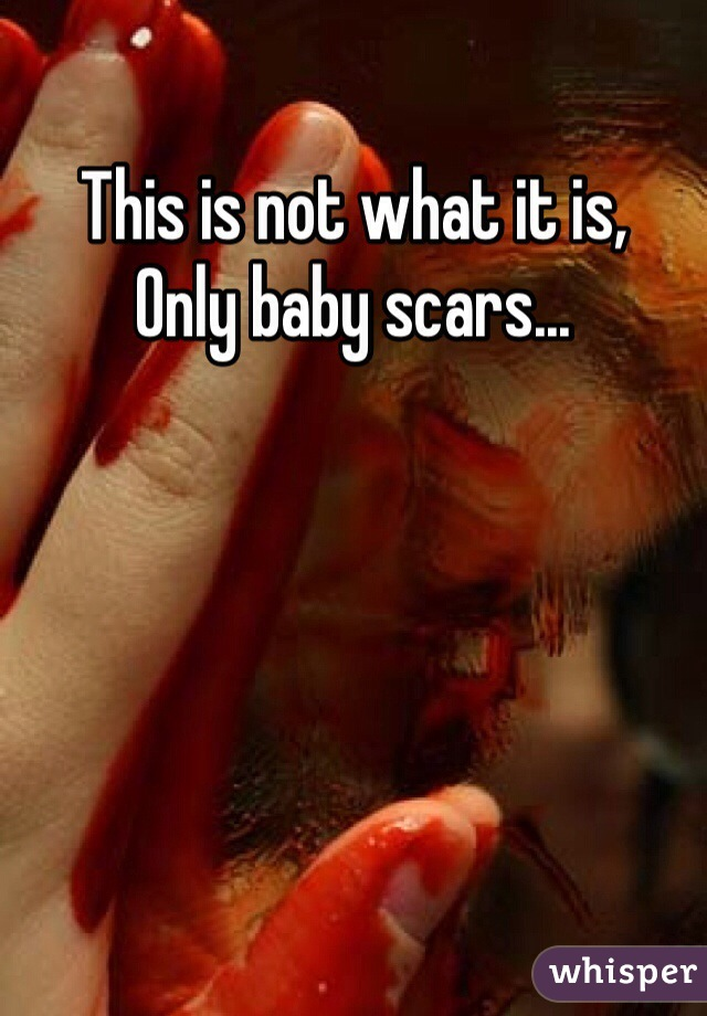 This is not what it is,  Only baby scars...