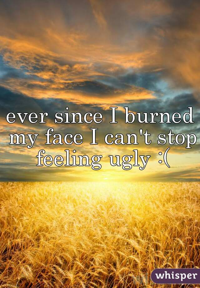 ever since I burned my face I can't stop feeling ugly :(