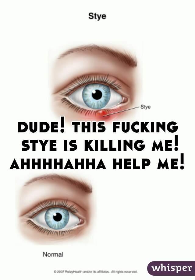 dude! this fucking stye is killing me! ahhhhahha help me!