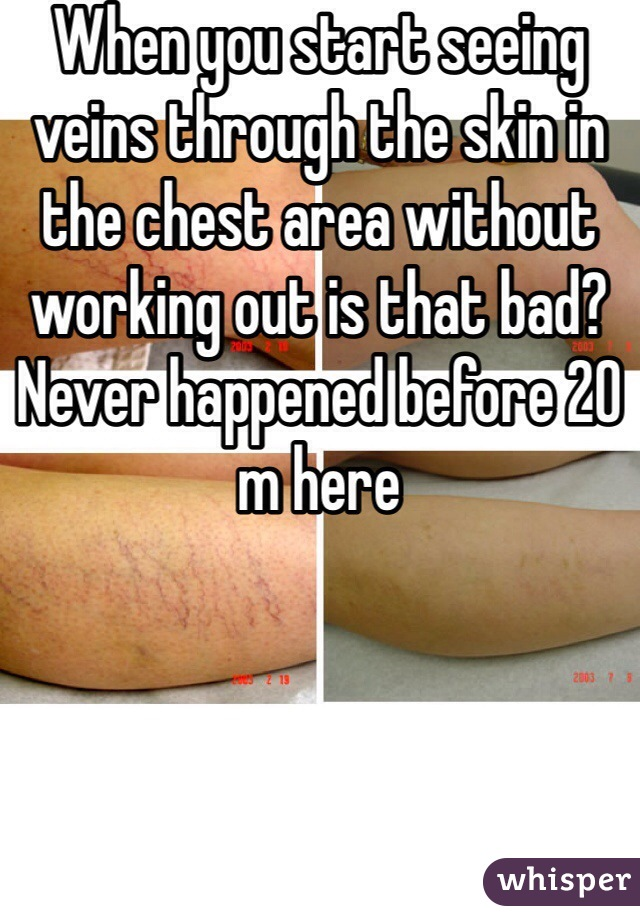 When you start seeing veins through the skin in the chest area without working out is that bad? Never happened before 20 m here