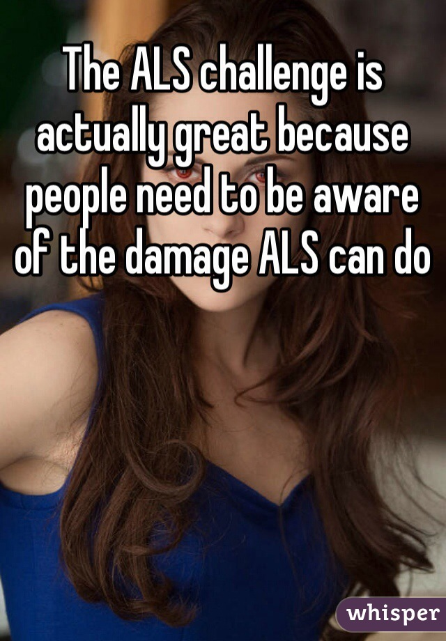 The ALS challenge is actually great because people need to be aware of the damage ALS can do