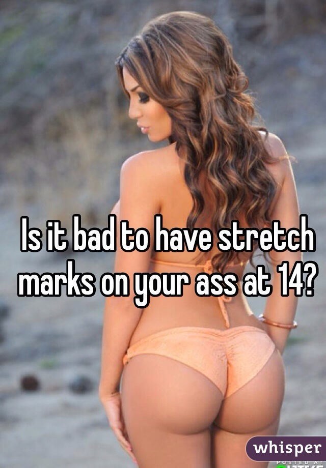 Is it bad to have stretch marks on your ass at 14?