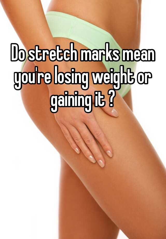Do Stretch Marks Mean You Re Losing Weight Or Gaining It