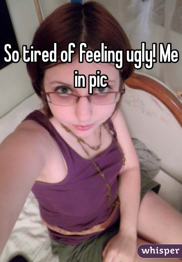 So tired of feeling ugly! Me in pic