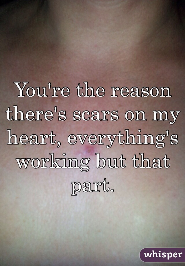 You're the reason there's scars on my heart, everything's working but that part.