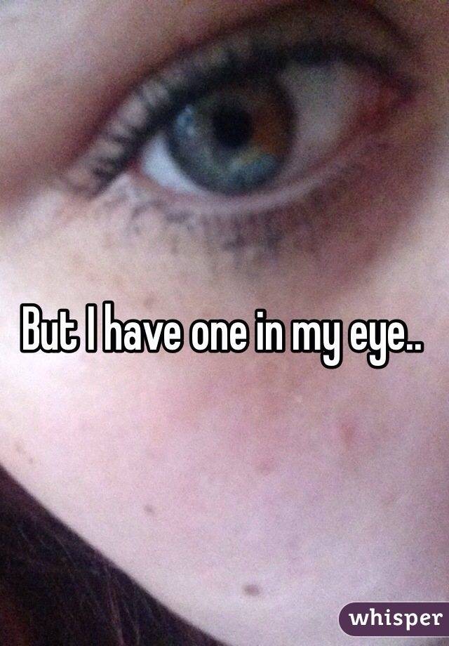 But I have one in my eye..