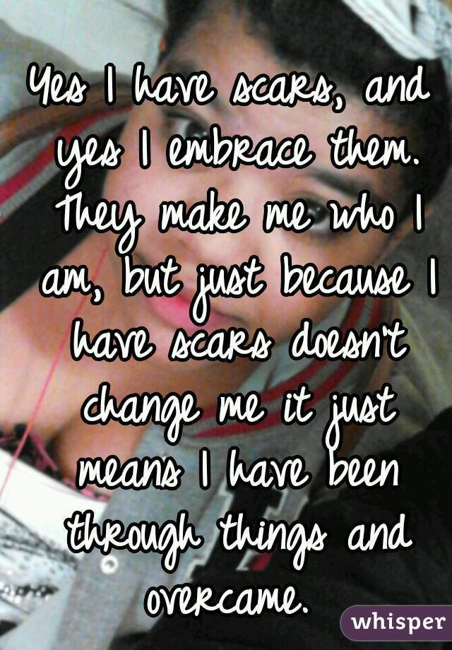 Yes I have scars, and yes I embrace them. They make me who I am, but just because I have scars doesn't change me it just means I have been through things and overcame.