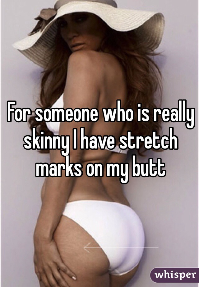 For someone who is really skinny I have stretch marks on my butt