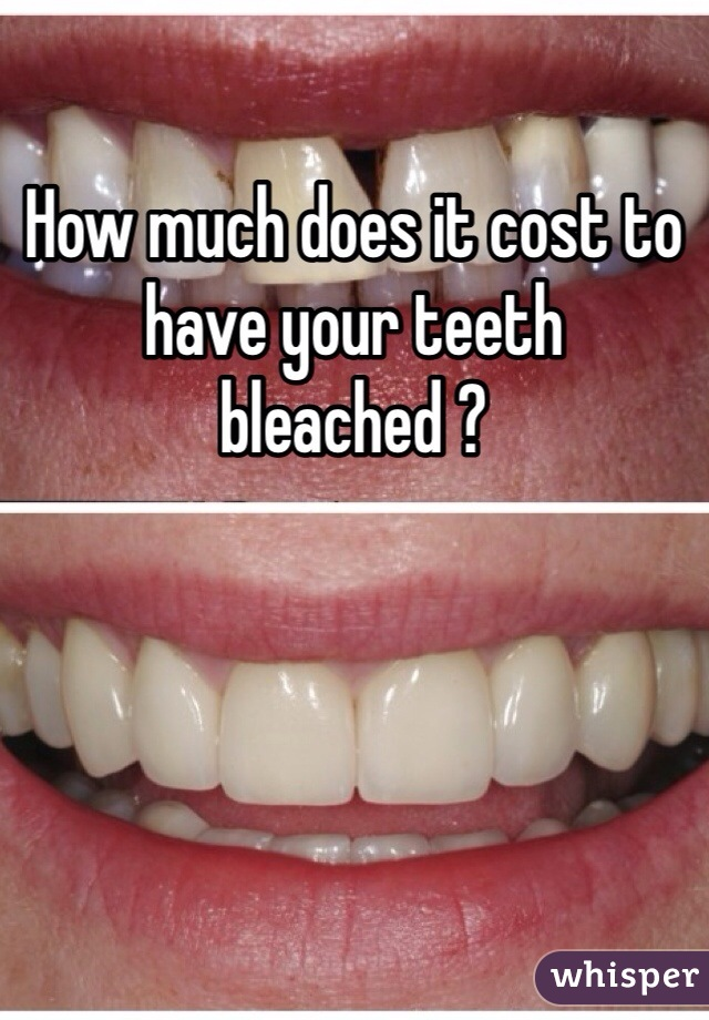 How much does it cost to have your teeth bleached ?