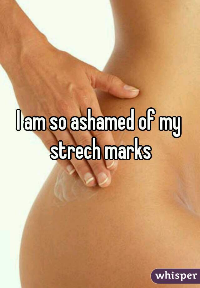 I am so ashamed of my strech marks