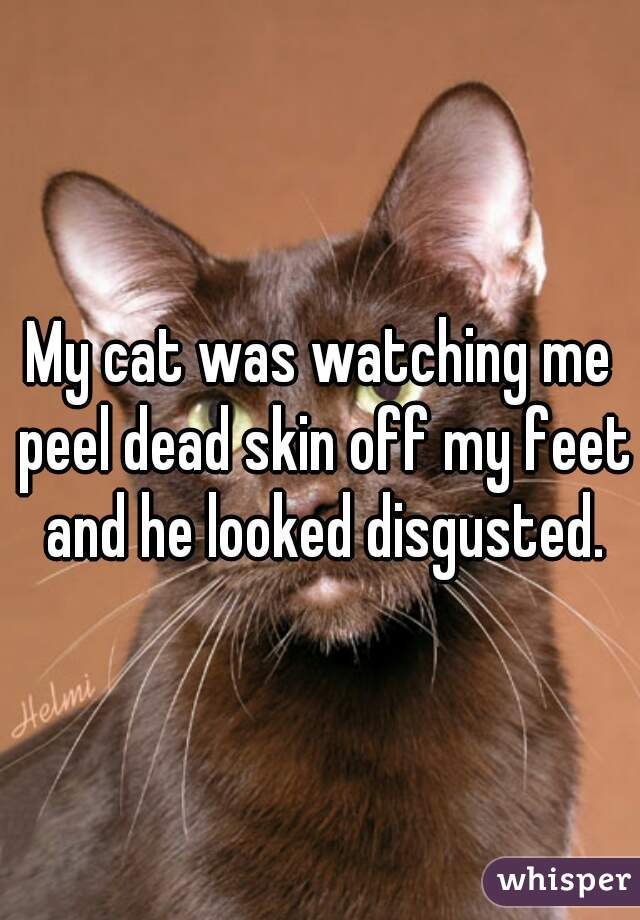 My cat was watching me peel dead skin off my feet and he looked disgusted.